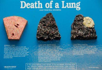 Lung death